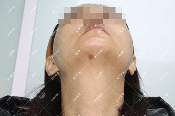 辽宁张女士下颌点痣半年增生疤痕治疗案例(图2)
