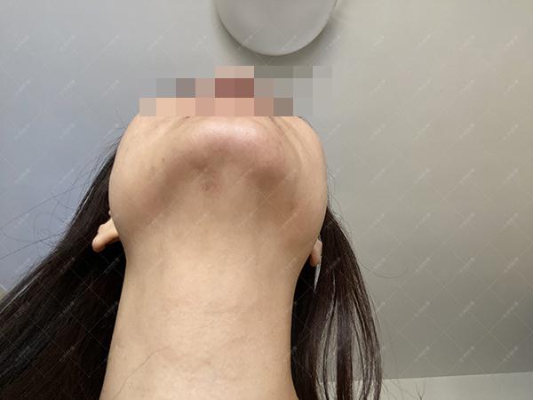 辽宁张女士下颌点痣半年增生疤痕治疗案例(图3)
