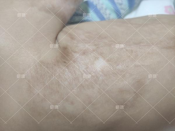 江西2岁小城胸口、手臂烫伤疤痕增生治疗案例(图3)