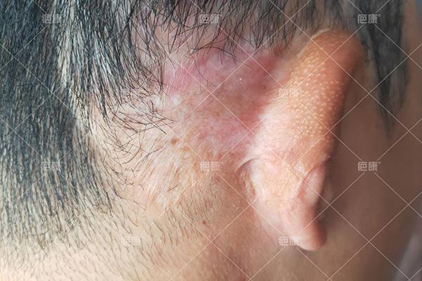 福建小志耳后1年疤痕疙瘩治疗案例(图3)